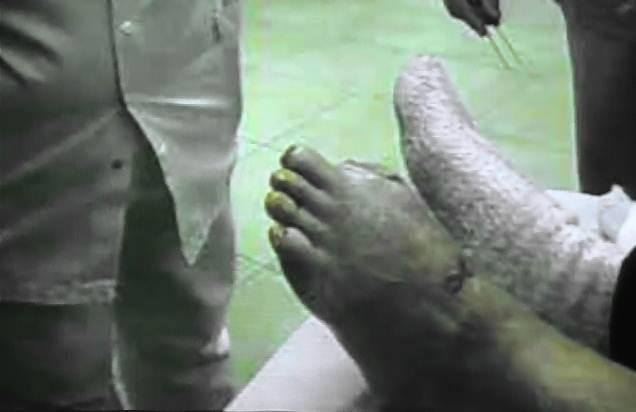 Come trattare un fungo di unghie gli unguenti antifungosi