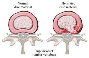 Terzo periodo osteochondrosis cervicale
